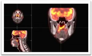 March_2020_NEWS__3_Million_P.E.T._Scan_Shows_Significant_Brain_Changes_after_Chiropractic_Adjustment