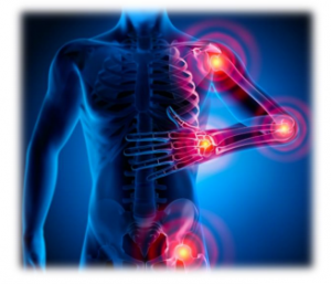 Research Reveals How Chiropractic Uniquely Helps Fibromyalgia Sufferers